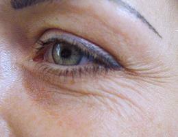 Эффективный крем от морщин под глазам