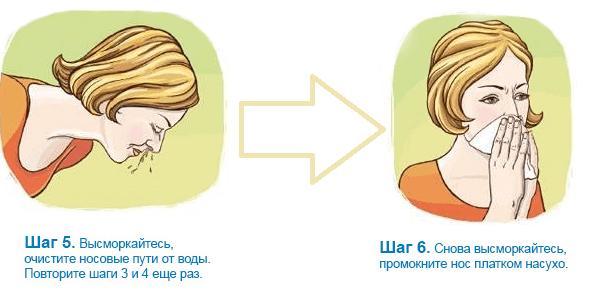 Как правильно промывать нос физраствором беременной 22