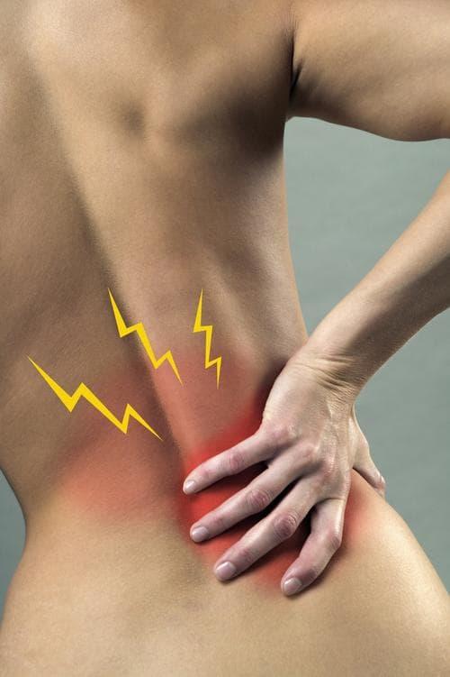 Сколько времени болит спина при радикулите