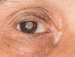 Лечение катаракты семенами укропа