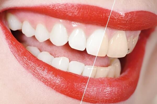 Как отбелить зубы с помощью куркумы?