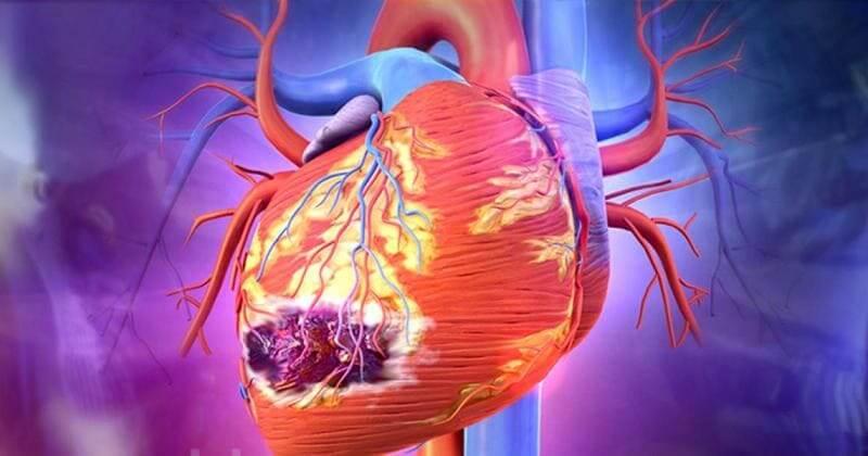 Инфаркт миокарда. Что делать до приезда скорой? Это нужно знать!