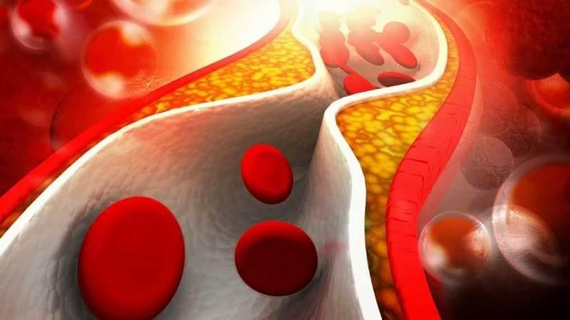 Что кушать при повышенном холестерине?