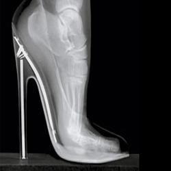 Положение стопы в обуви на высоком каблуке