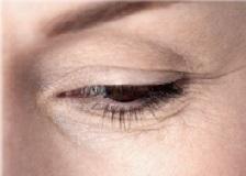 Морщины под глазами