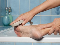 Как избавиться от мозолей на ногах в домашних условиях?