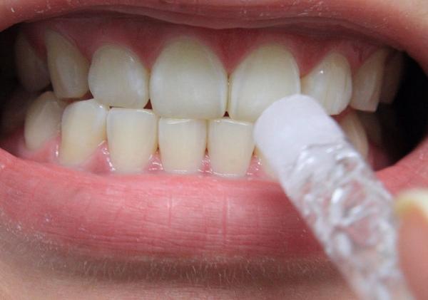 Отбеливание зубов гелем