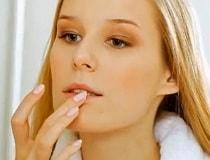 Герпес на губах лечение. Быстро, в домашних условиях народными средствами