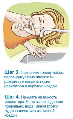 Шаг 3 и 4