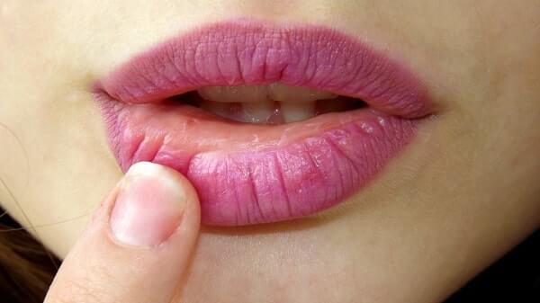 Чем мазать простуду на губах?