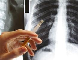 Как быстро очистить лёгкие после курения?