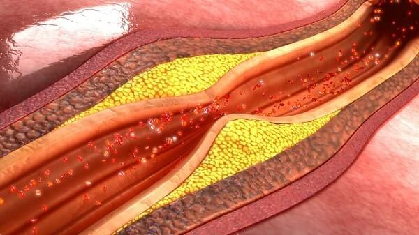 Лечение атеросклероза нижних конечностей народными средствами