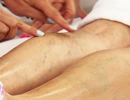 Трофические язвы на ногах и их лечение в домашних условиях