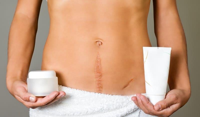 Народное средство для шрамов после операции