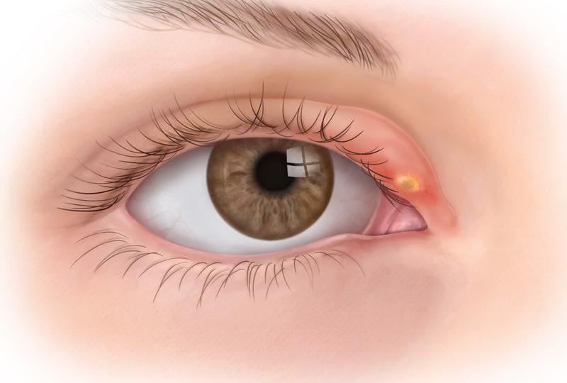 Необычный способ лечения ячменя на глазу в домашних условиях