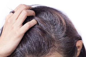 Раннее поседение волос