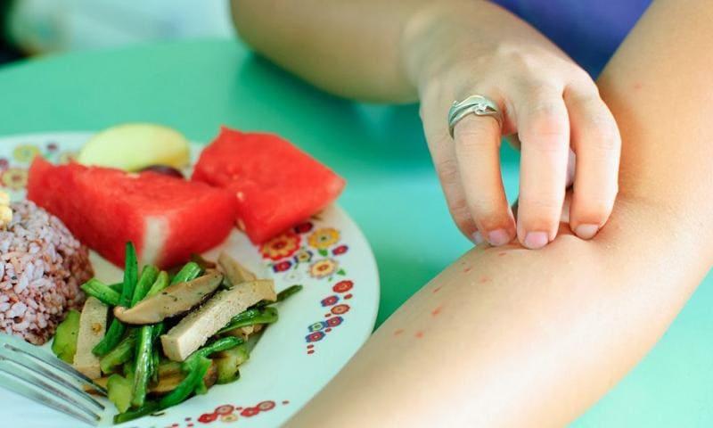 Как проявляется аллергия на продукты?