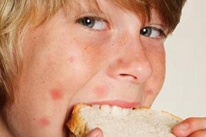 Какие продукты вызывают аллергию?
