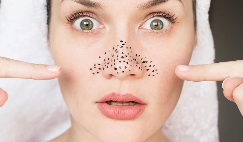 Как очистить забитые поры на лице?